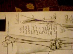 sm- left leg fracture sketch    P1460160
