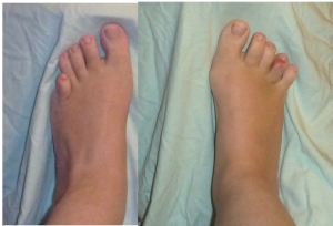 b. bunions on both feet