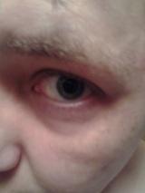 ME- Eye swelling 3- 2015