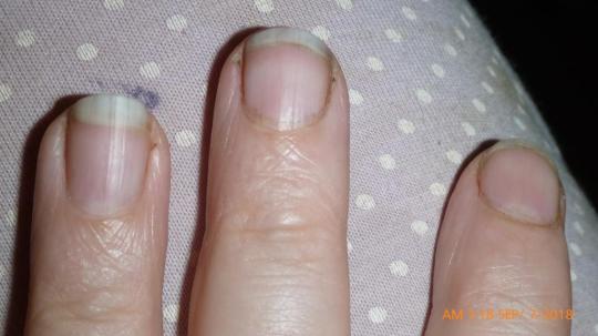 P1700371- 3 fingers