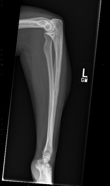 Blog- Left inner leg