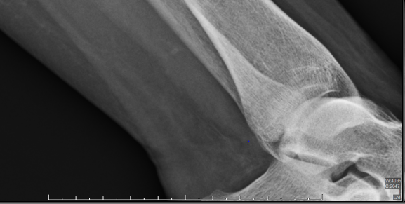 Bloodvessles and upper ankle bone